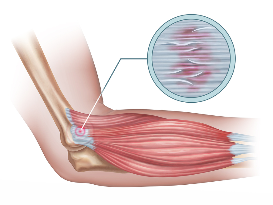 Benefits of Massage for Tendonitis